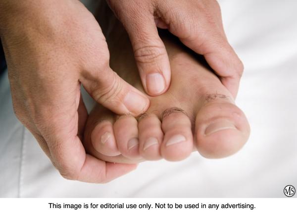 Treating toenail fungus naturally Homeopathic treatment less risky ...